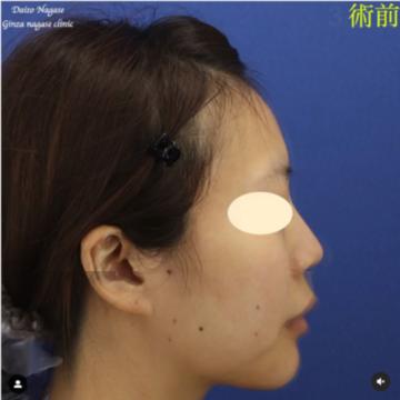 銀座長瀬クリニックの鼻の整形の症例写真[ビフォー]