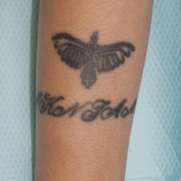 タウン形成外科クリニックのタトゥー除去(刺青・入れ墨を消す治療)の症例写真[ビフォー]