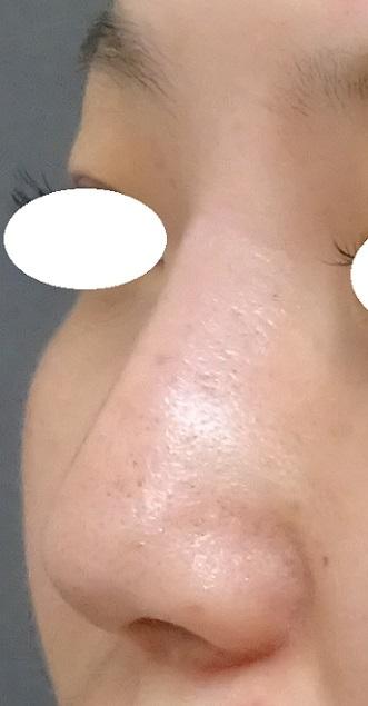 TCB 東京中央美容外科の鼻の整形の症例写真[アフター]