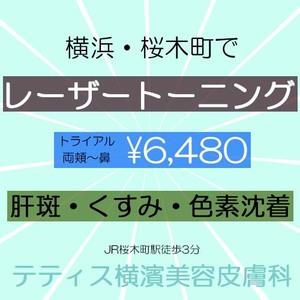 レーザートーニング・肝斑・くすみ・治療・テティス横濱美容皮膚科
