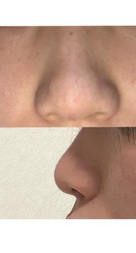 団子鼻とあぐら鼻が合わさっている場合 | 鼻の整形の治療への不安 ...