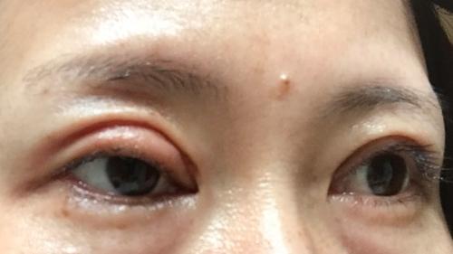 眼瞼下垂術後1ヶ月ですが、片目の腫れが引きません