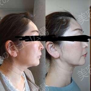 東京美容医療クリニックの脂肪吸引の症例写真