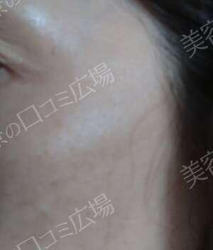 湘南美容クリニック 町田院のシミ取り・肝斑・毛穴治療の症例写真[ビフォー]