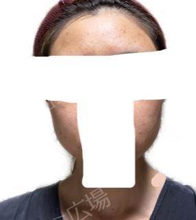 タウン形成外科クリニックの症例写真[アフター]