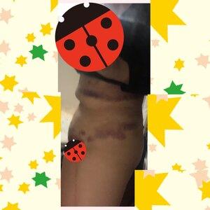 シリンジ法による脂肪吸引の治療直後の症例写真