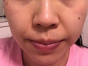 フォトシルクプラス(フォトシルク・プラス 顔全体 1回)の治療直後の症例写真