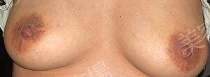 乳輪縮小(他院修正)の治療結果の症例写真