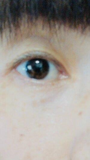 大塚美容形成外科 横浜院の目・二重整形の症例写真[ビフォー]