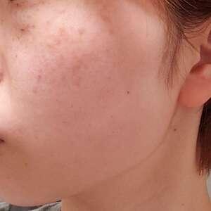 フォトシルク・プラス 顔全体 1回の治療結果の症例写真
