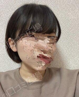 福岡博多駅前通中央クリニックのピアス穴あけの症例写真[ビフォー]