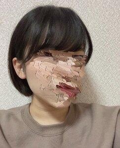 ピアス穴あけ(両耳(消毒液・医療用ファーストピアス込))の治療前の症例写真