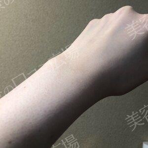 神戸ヴィオラクリニックの医療脱毛の症例写真[ビフォー]