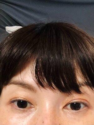 大塚美容形成外科 横浜院の症例写真[アフター]