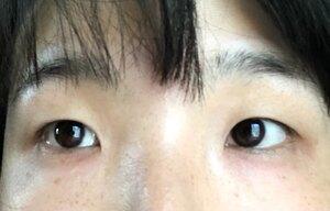 医療法人社団静美心会 ラ・クリニカ シズオカの目・二重整形の症例写真[ビフォー]