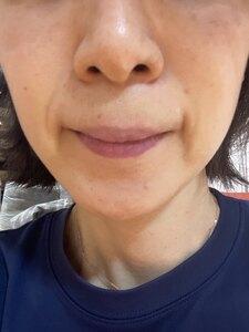 フォトシルクプラス(フォトシルク・プラス 顔全体 1回)の治療結果の症例写真