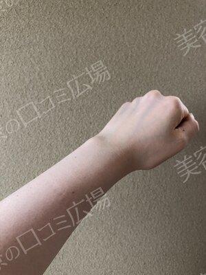 神戸ヴィオラクリニックの症例写真[アフター]