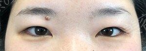 TCB東京中央美容外科の目・二重整形の症例写真[ビフォー]