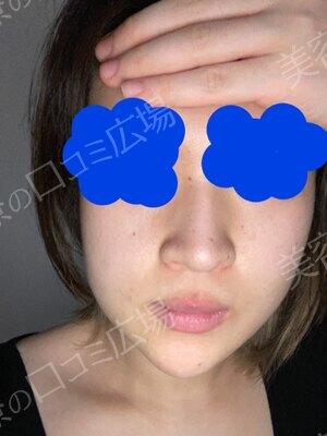 静岡美容外科橋本クリニックのほくろ除去・あざ治療・イボ治療の症例写真[ビフォー]
