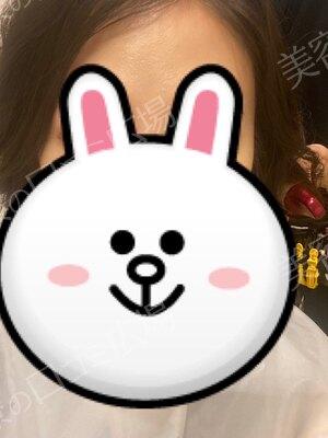 湘南美容クリニック 大阪心斎橋院の顔のしわ・たるみの整形の症例写真[ビフォー]