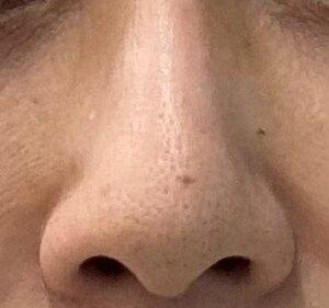 TCB東京中央美容外科 千葉院のほくろ除去・あざ治療・イボ治療の症例写真[ビフォー]