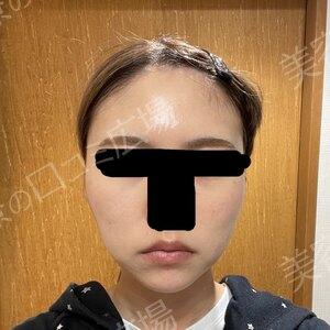 湘南美容クリニック 浜松院の症例写真[アフター]
