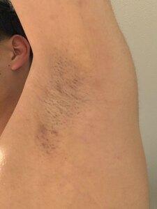 ミラドライの治療前の症例写真