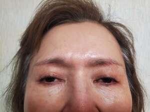 湘南美容クリニック 大阪駅前院【女性専用】の顔のしわ・たるみの整形の症例写真[ビフォー]