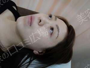 浜松中央クリニックのアートメイクの症例写真
