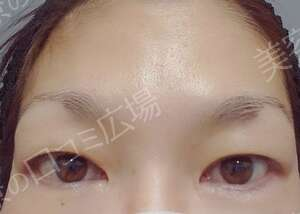 TCB東京中央美容外科 岡山院の目・二重整形の症例写真[ビフォー]