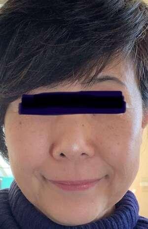 エストクリニック 横浜院のほくろ除去・あざ治療・イボ治療の症例写真[ビフォー]