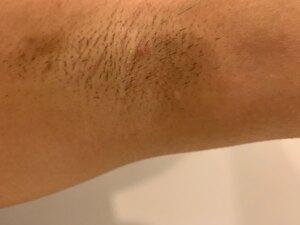 ミラドライの治療結果の症例写真