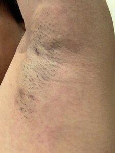 ミラドライの治療直後の症例写真