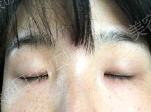 埋没法(二重・埋没法 技術に定評のある挙筋法)の治療前の症例写真