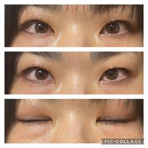 福岡博多駅前通中央クリニックの目・二重整形の症例写真[ビフォー]