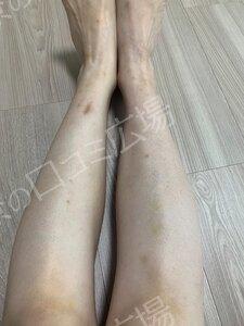 膝下3回 ,VIO3回の治療前の症例写真