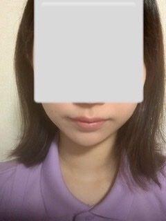 湘南美容クリニック 浜松院のリフトアップレーザーの症例写真