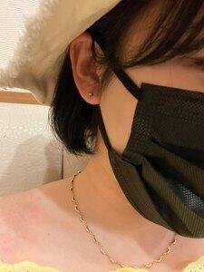 ピアス穴あけ(両耳(消毒液・医療用ファーストピアス込))の治療直後の症例写真