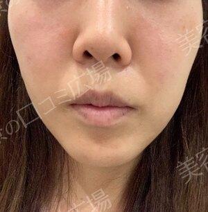 の目元整形・クマ治療の症例写真