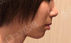 植村美容外科の症例写真[アフター]