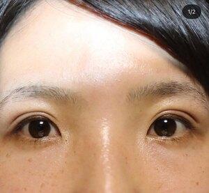 医療法人社団静美心会 ラ・クリニカ シズオカの症例写真[アフター]