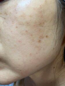 フォトシルクプラス(フォトシルク・プラス 顔全体 1回)の治療前の症例写真