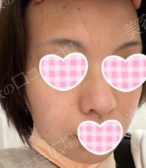 福岡博多駅前通中央クリニックのほくろ除去・あざ治療・イボ治療の症例写真[ビフォー]