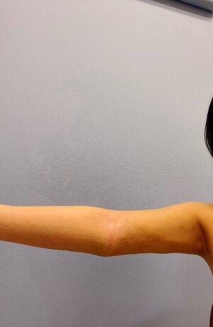 湘南美容クリニック 大阪駅前院【女性専用】の症例写真[アフター]