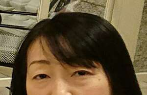 クマ治療コンプリート法(目の下のクマ取り)の治療前の症例写真