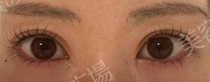 東京美容医療クリニックの症例写真[アフター]
