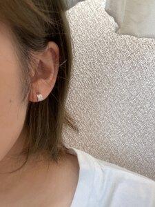 ピアス穴あけ(両耳(消毒液・医療用ファーストピアス込))の治療結果の症例写真