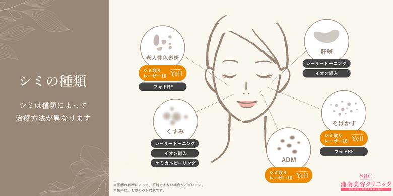 の 取り 顔 方 の シミ 手のシミを取る方法!簡単!効果的な知られざるやり方